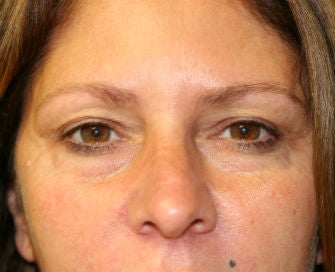 Lower eyelid blepharoplasty before 378916