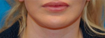 Lip Augmentation after 399262