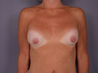 Circumareolar Breast Lift and Implants  before 307463