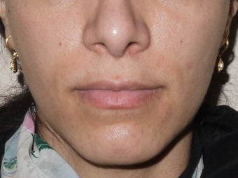 Botox Jawline Reduction after 517203