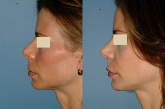 Rhinoplasty - Secondary before 127505