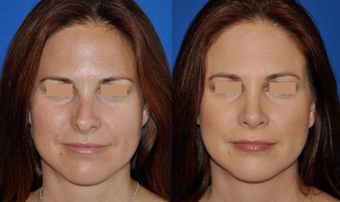 Revision Rhinoplasty before 293542