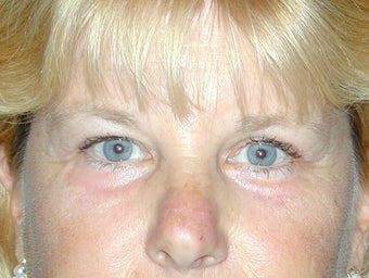 Endoscopic Brow Lift and Blepharoplasty after 249007