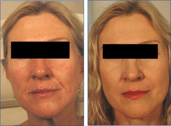 Restylane for Laugh Lines Before and After Photo before 396171