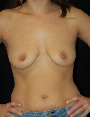 Breast Augmentation, gel implants before 392059