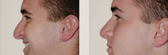 Primary Rhinoplasty before 271735
