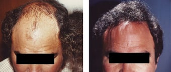 hair transplant before 369170
