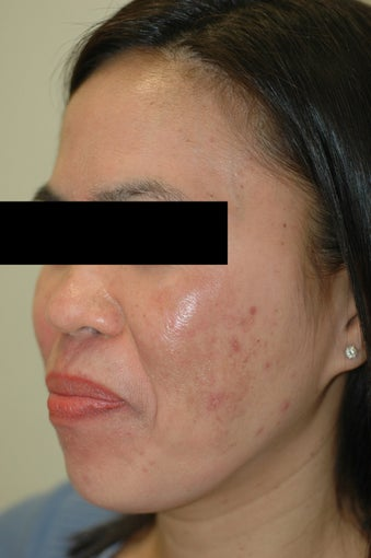Melasma Treatment Before and After Photos after 641757