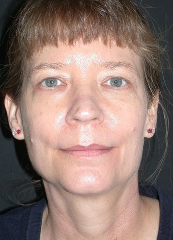 Endoscopic forehead lift, Upper and Lower Blepharoplasty before 330080