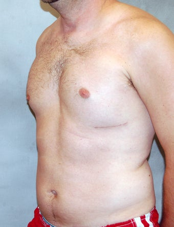 Male Chest Enhancement after 525472