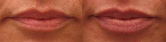 Lip Augmentation with Restylane before 267636