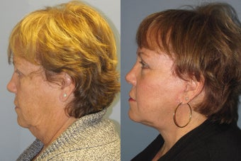 Lite Lift, liposuction of the neck, eyelid lift, brow lift after 523453
