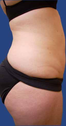 Abdomen Liposuction after 513379