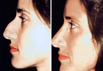 38 year old female, rhinoplasty before 629107
