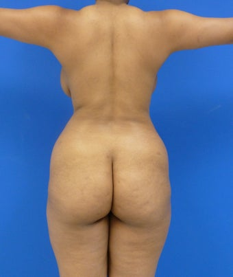 Buttock Augmentation before 548395