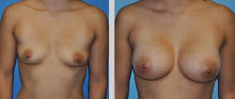 Flash Recovery Breast Augmentation (TM) before 256399