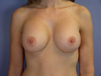 Breast Implants  after 305412