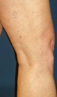 Sclerotherapy after 370426