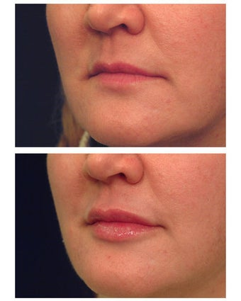 Injectable Filler before 301197