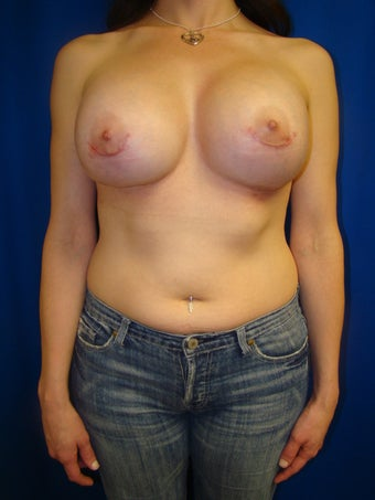 Breast Augmentation after 76652