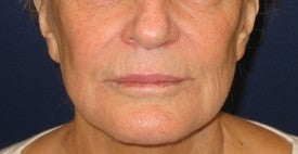 Restylane injection into lips and nasolabial folds before 109944