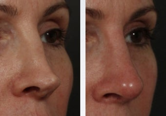 Revision Rhinoplasty before 358999