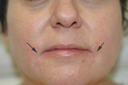 Restylane and Botox for mouth rejuvenation after 93349