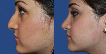 Rhinoplasty before 633424