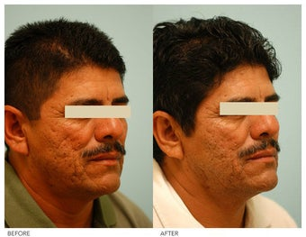 Acne Scarring Correction before 136800