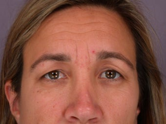 Eyelid Surgery  before 306459