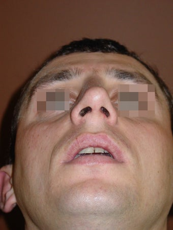 Crooked nose correction 557630