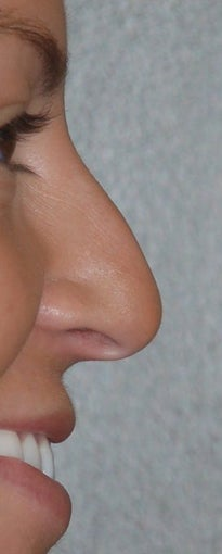 Rhinoplasty - Hump Reduction, Lift Drooping Tip before 134439