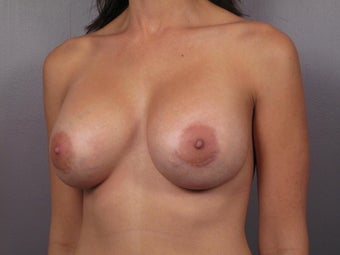 Breast Revision Surgery  after 307419
