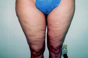 Medial Thigh Lift after 247666