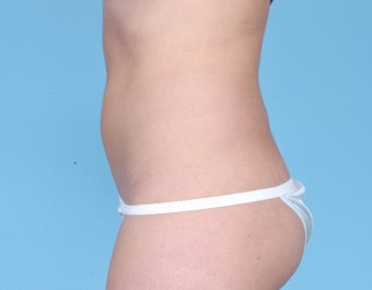 CoolSculpting 506622