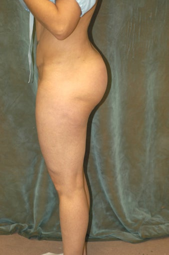 Butt Augmentation after 510793