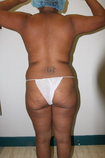 Brazilian Butt Lift 515809