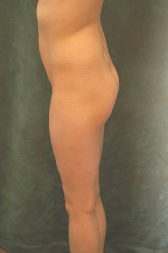 Women's Buttocks Augmentation  before 518136