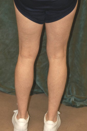 Men's Calf Augmentation  before 519057