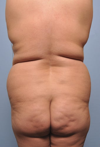 Body Liposuction before 520941