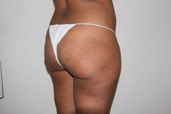 Brazilian Butt Lift 526156