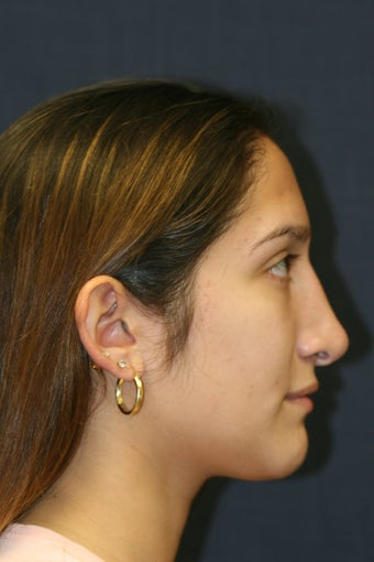 Rhinoplasty and Septoplasty 527291