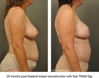 Breast Reconstruction 529310