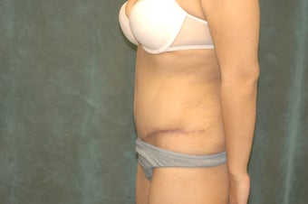 Women's Tummy Tuck Revision  558745
