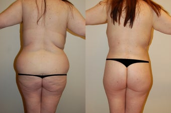 Body Lift & Brazilian Butt Lift 574698