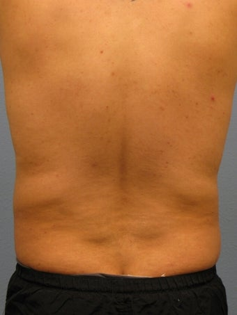 Liposuction Male 575522