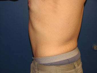 Male Tummy Tuck 576569