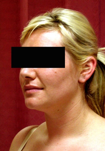 liposuction of neck & jaw line for women 583584