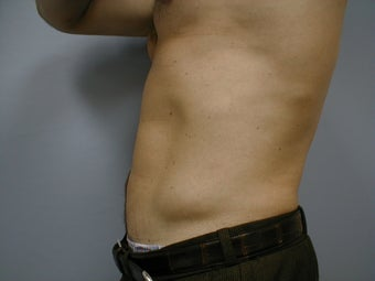 Male contouring liposuction 590924