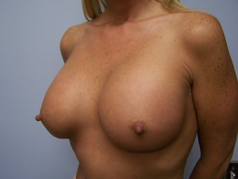 Who does very large breast implants